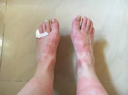 Heat rash and blisters on the hot days through the Meseta.
