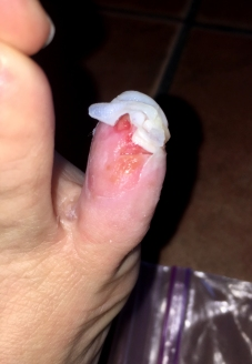 The lost toenail was incredibly painful.
